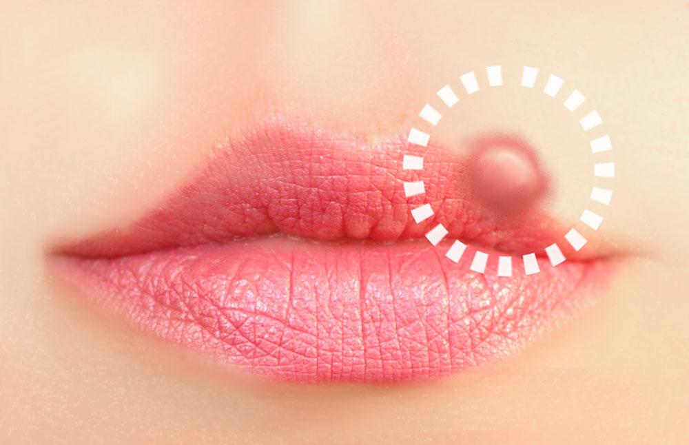 Herpesblaeschen-an-der-Lippe