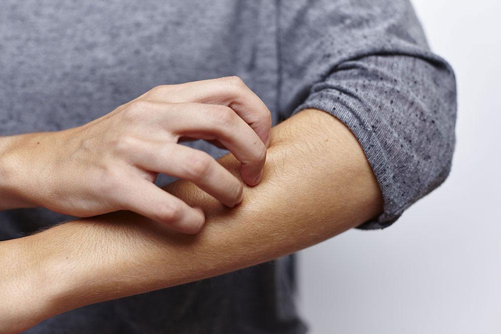 Mann-kratzt-sich-den-Arm